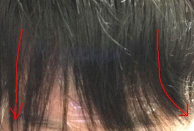 ストレートパーマ・縮毛矯正 失敗